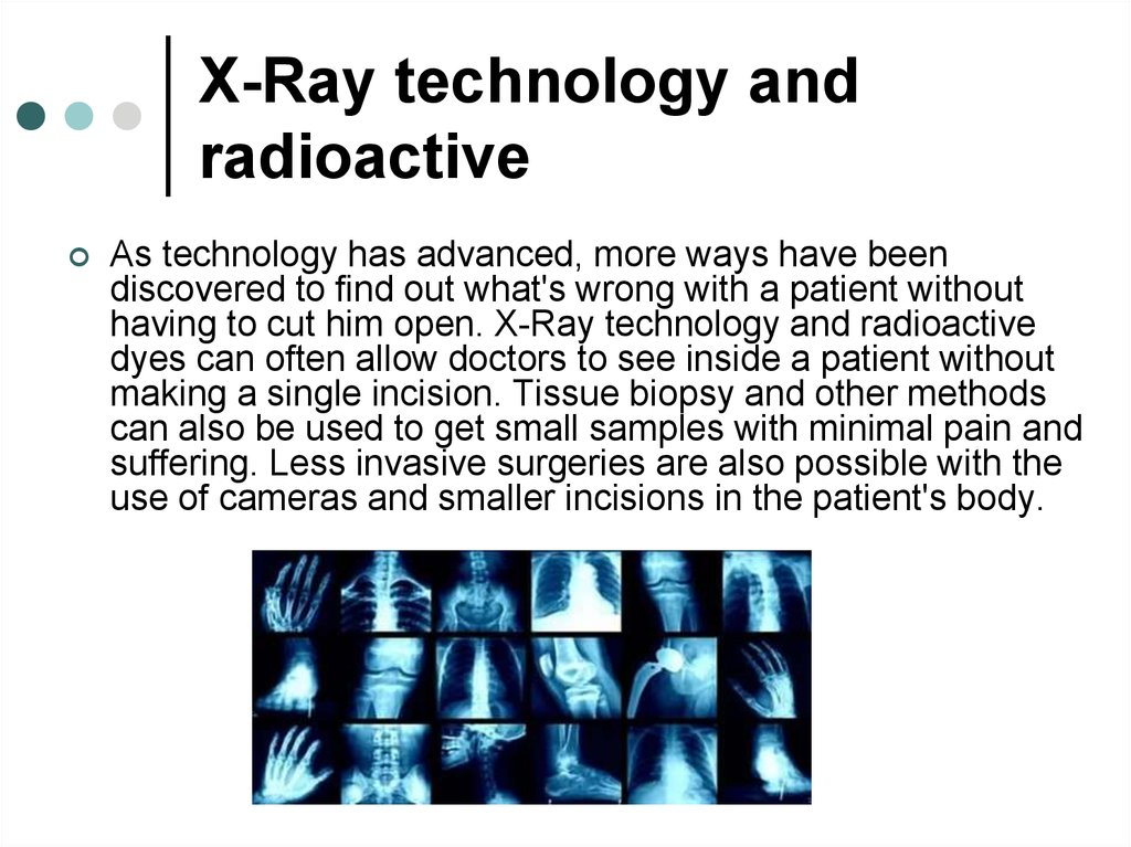 X-Ray technology and radioactive