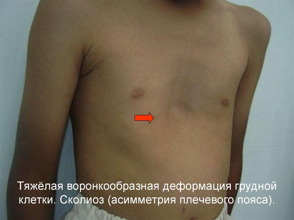 Деформация грудной клетки при грудном сколиозе