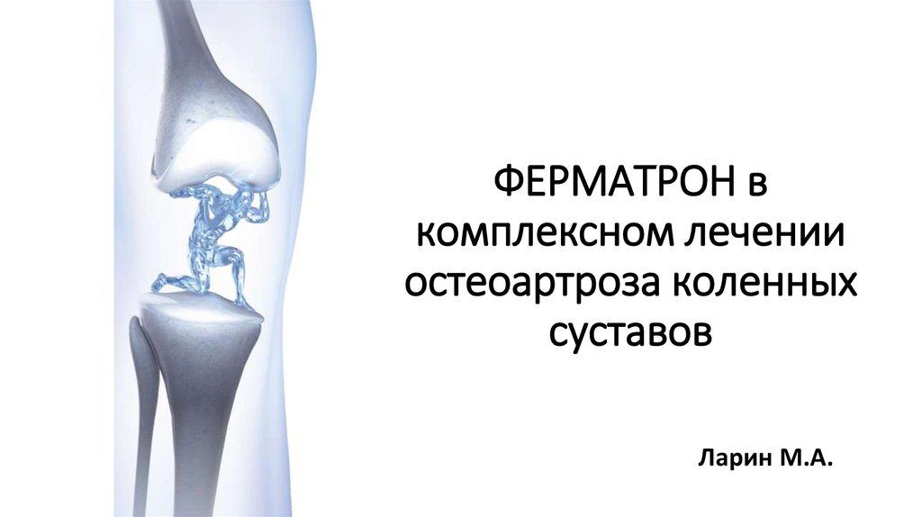 Современнон лечение остеоартрозов коленных суставов поддерживатель для локтевого сустава