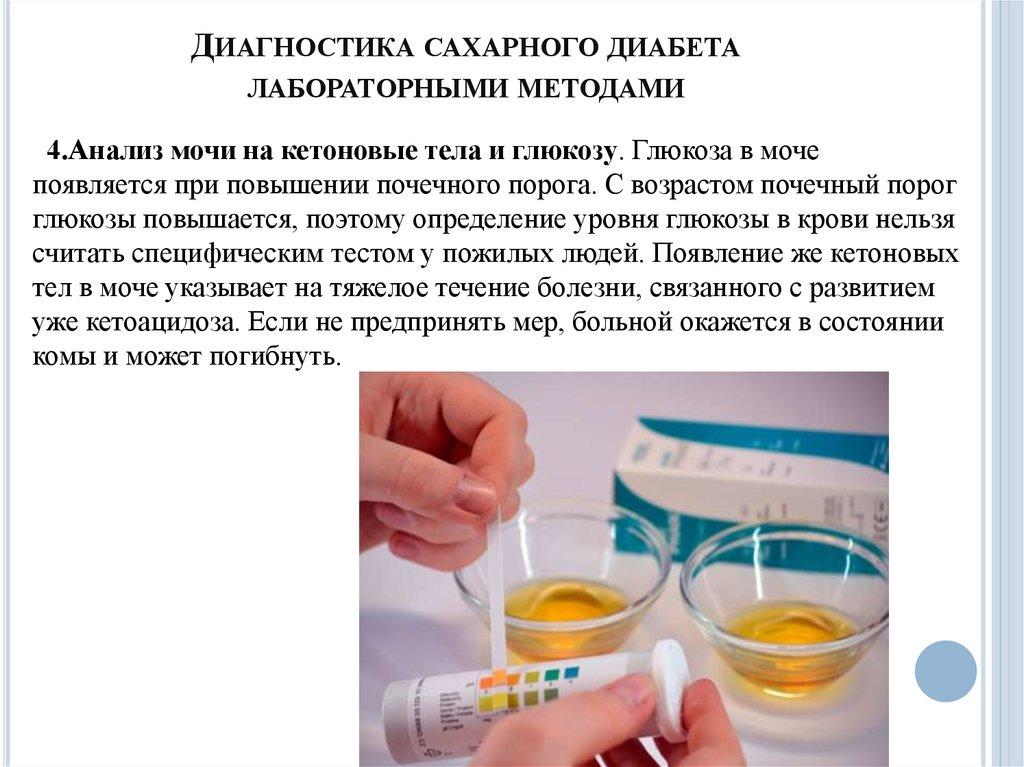 Сахарный диабет клинические проявления диагностика