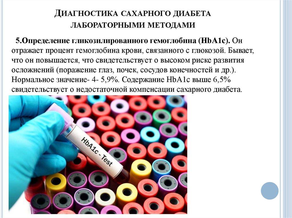 Лабораторные исследования сахарного диабета его осложнений