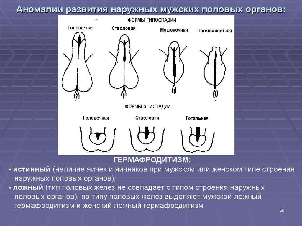 Баланит (воспаление головки полового члена)