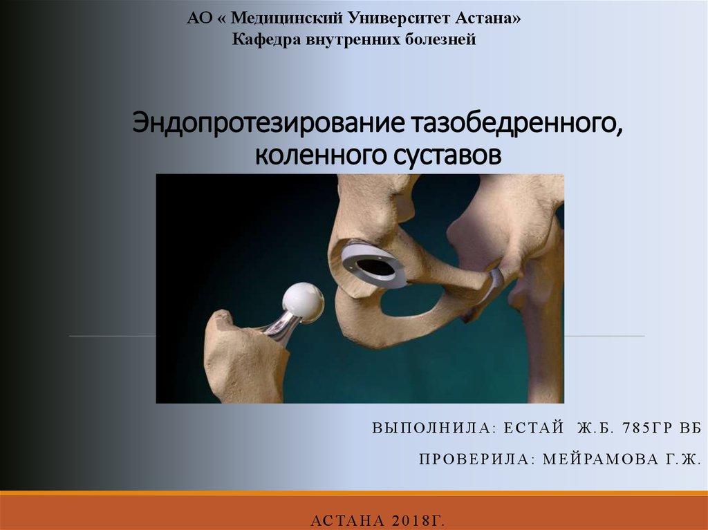 Замена коленных суставов в казахстане болит тазобедренный сустав при ходьбе лечение