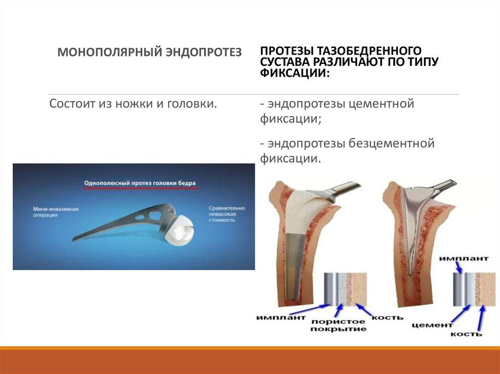 Эндопротезирование коленного сустава в институте ревматологии деформирующий артроз коленного сустава 1 степени лечение