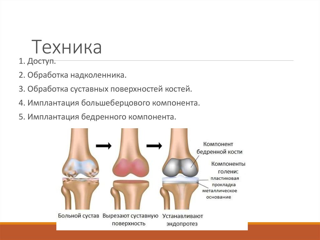 Биполярное эндопротезирование тазобедренного сустава техника артроз 2 степени тазобедренного сустава лечение