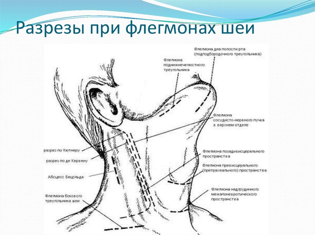 Заглоточные флегмоны шеи