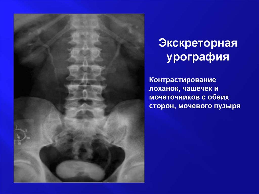 Методы диагностики в урологии презентация