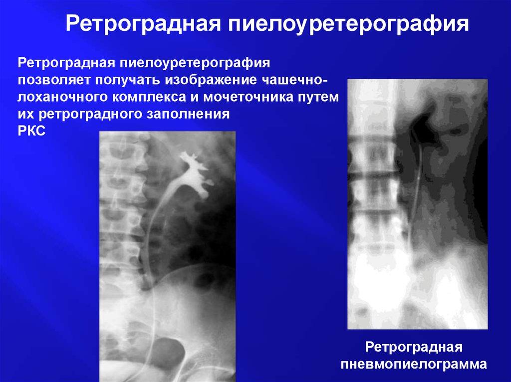 Ретроградная пиелоуретерография