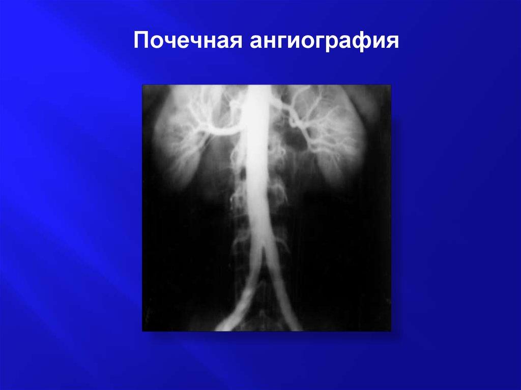 Почечная ангиография