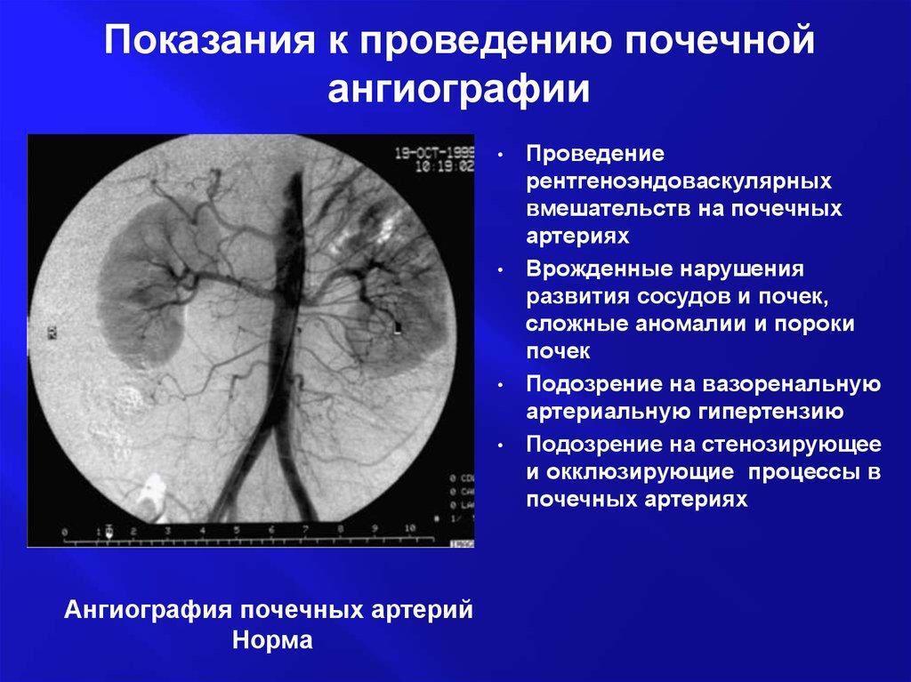 Показания к проведению почечной ангиографии