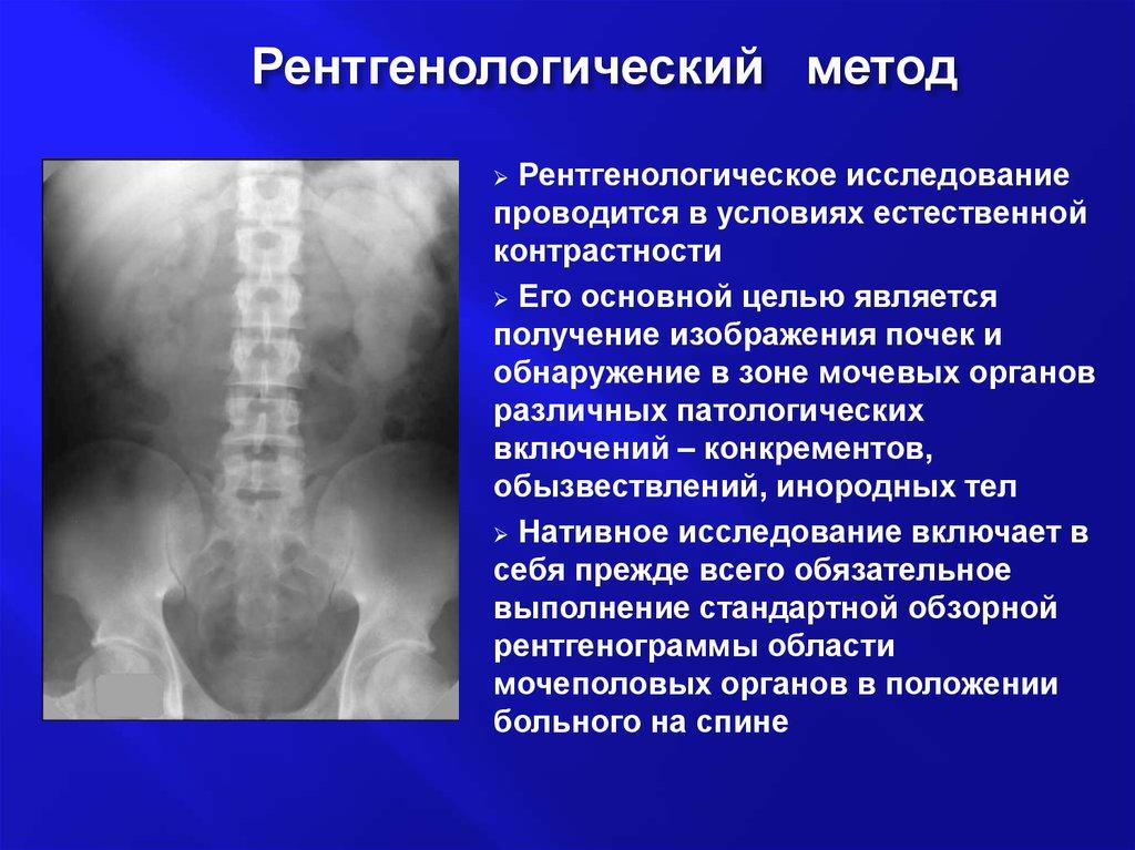 Рентгенологический метод