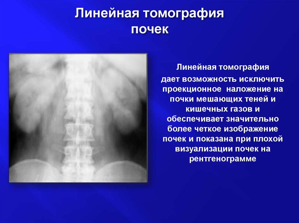 Линейная томография почек