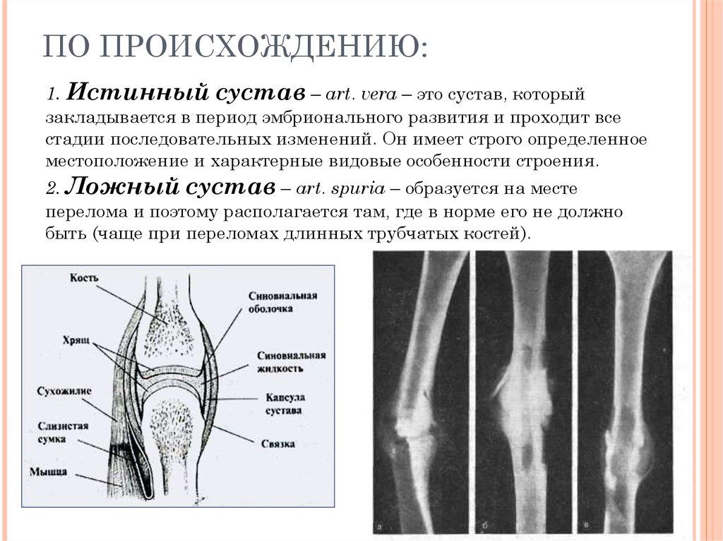 Истинный сустав повреждение заднего рога мениска коленного сустава
