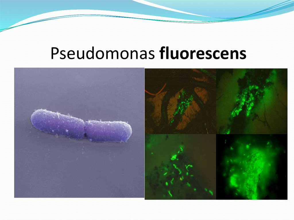 pseudomonas aeruginosa essay Excerpt from research paper : psuedomonas aeruginosa pseudomonas aeruginosa epidemiology the gram-negative, motile, rod-shaped bacterium pseudomonas aeruginosa is an opportunistic killer that takes advantage of people suffering from medical problems (van delden and iglewski, 1998)for this reason, p aeruginosa is one of the most common nosocomial infection that occurs in hospitals.