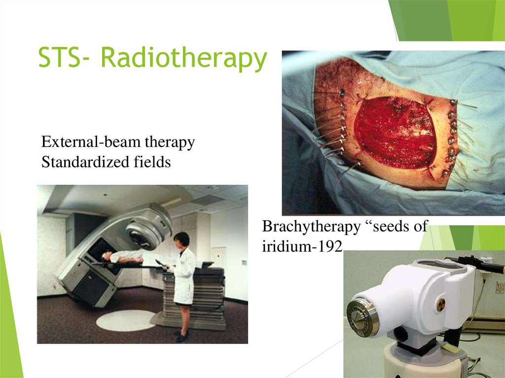 STS- Radiotherapy
