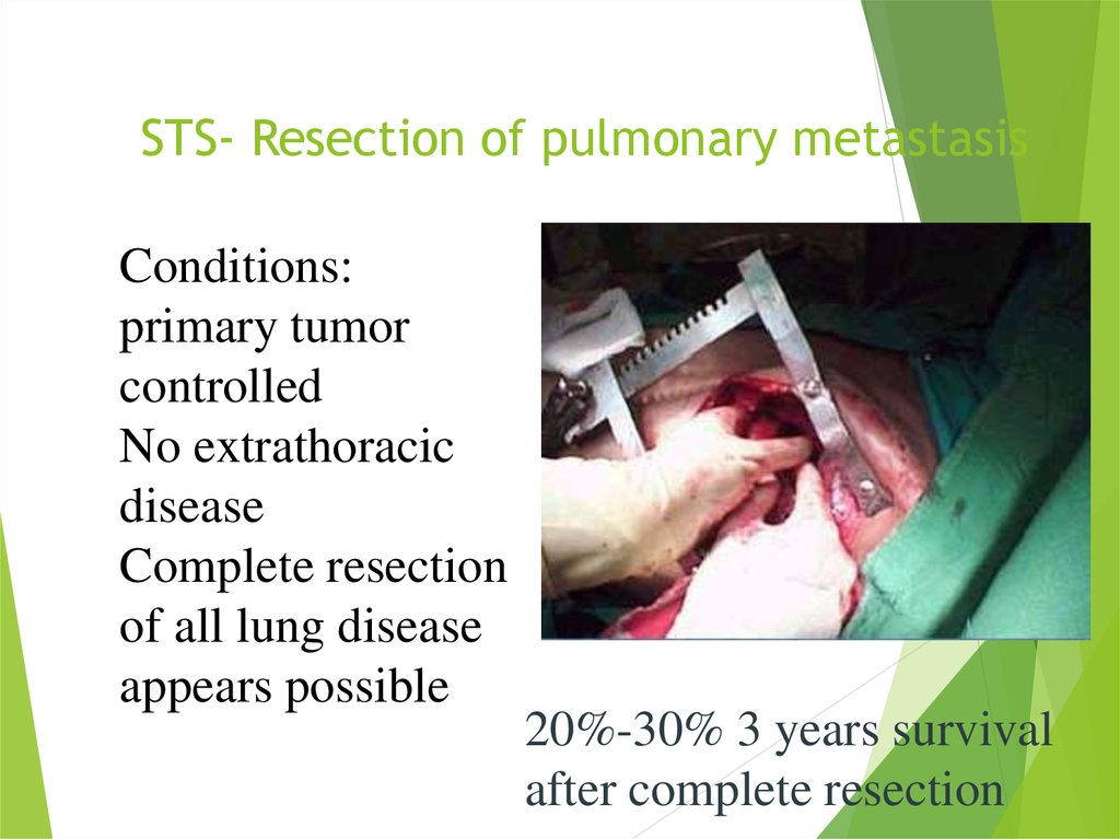 STS- Resection of pulmonary metastasis