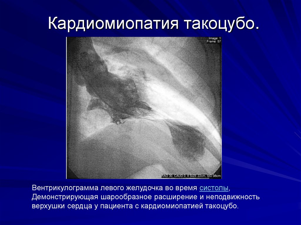 report on takotsubo cardiomyopathy Takotsubo cardiomyopathy (ttc), also known as stress-induced cardiomyopathy, is a cardiac syndrome that often mimics acute myocardial infarction ttc is commonly triggered by physical or emotional stress however, acute infection is a rarer etiology this report concerns the case of an 82-year-old.
