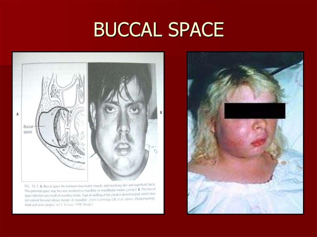 BUCCAL SPACE