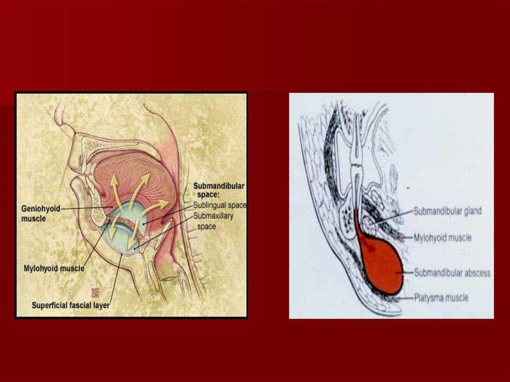 Surgical Fascial Spaces Online Presentation