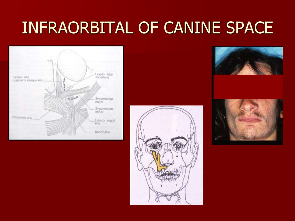 INFRAORBITAL OF CANINE SPACE