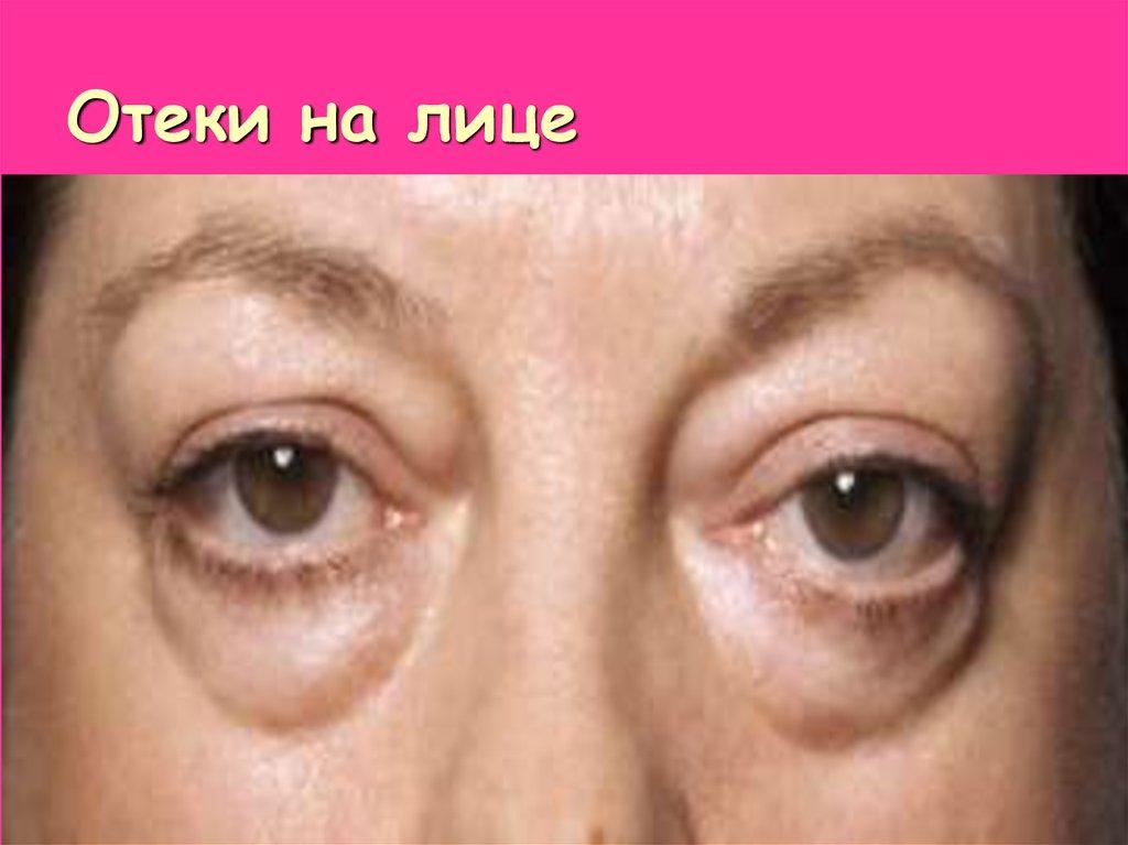 Как снять опухлость с лица после пьянки