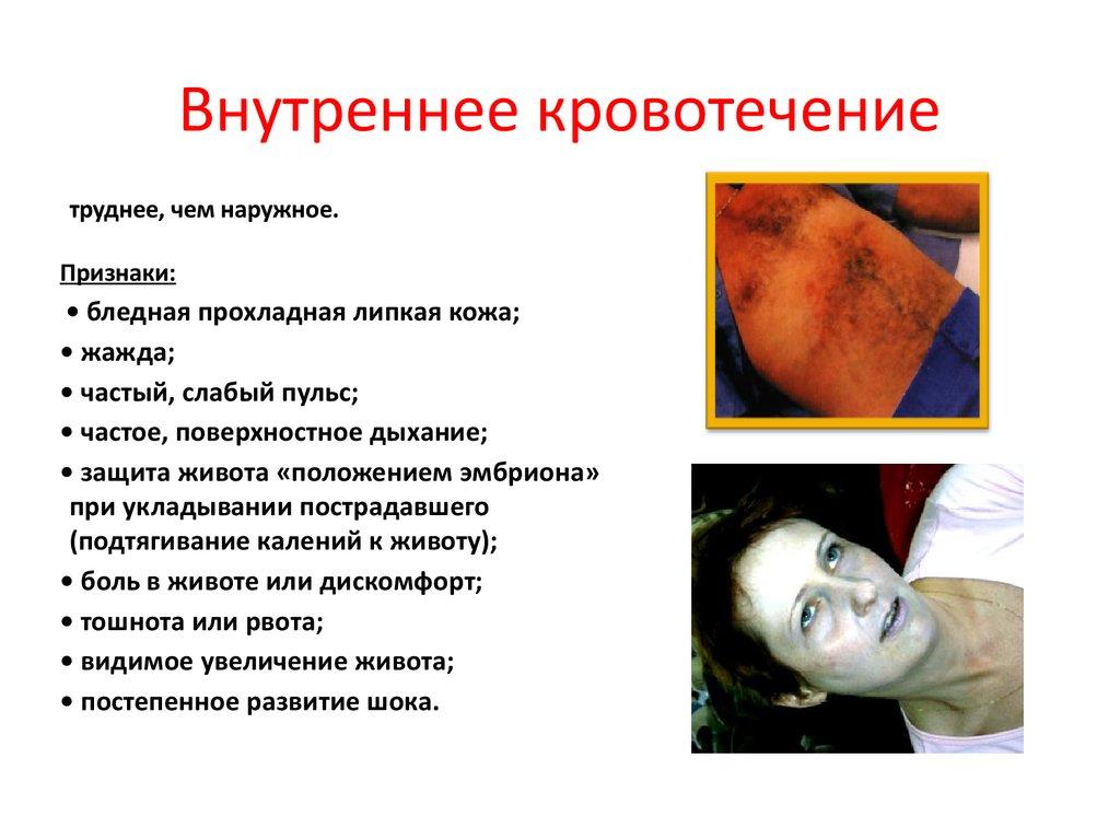 Внутреннее кровотечение в картинках