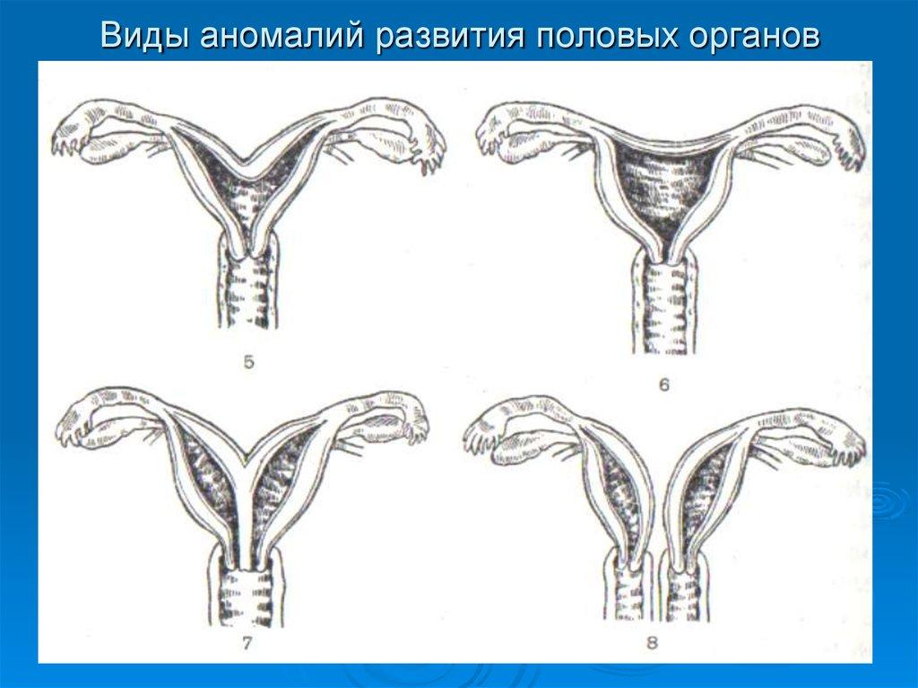 Аномалии половых органов и секс