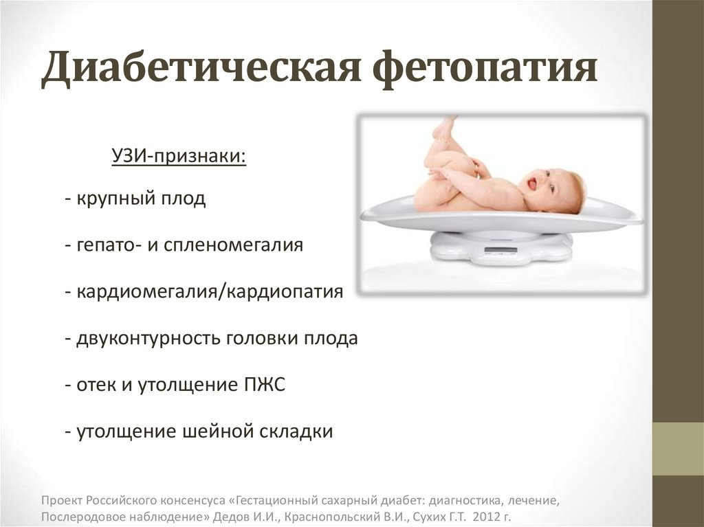 Если у младенца диабет признаки