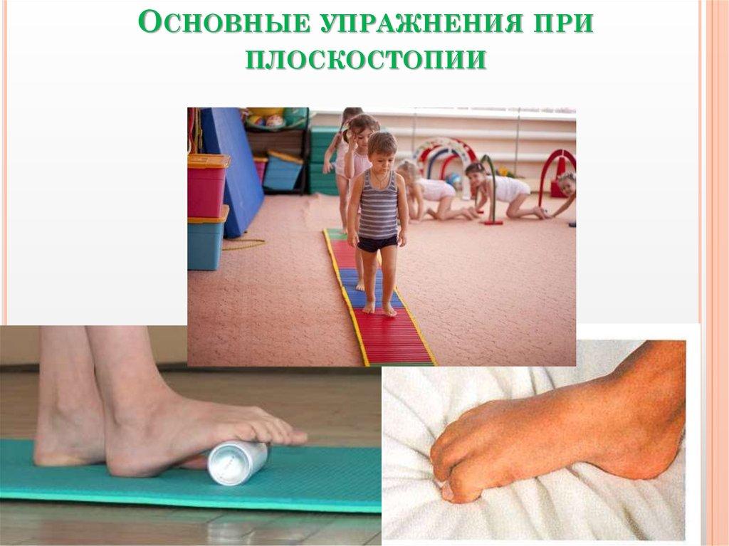 Картинки для детей плоскостопия