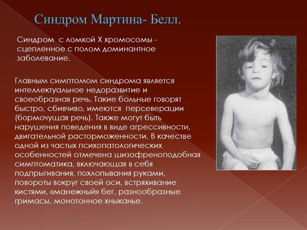 Синдром мартина-белл картинки