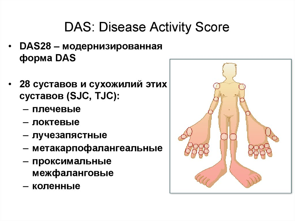 DAS: Disease Activity Score