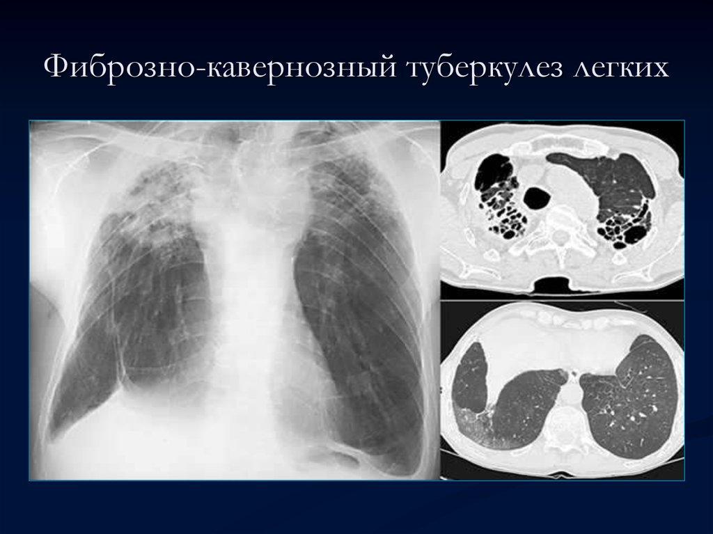 Фиброзно-кавернозный туберкулез картинки